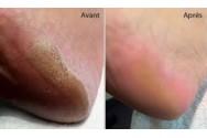 Beauté des pieds Calluspeeling